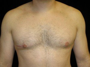 Reasons for Gynecomastia Revision Surgery