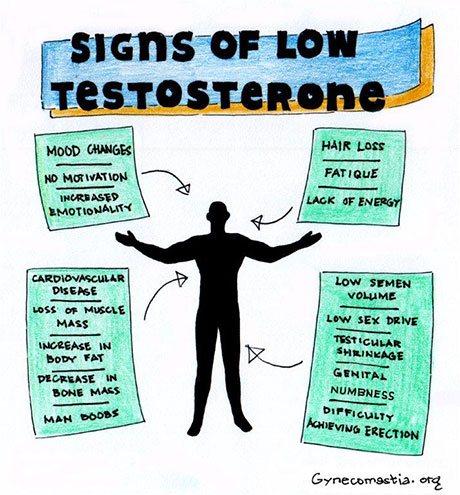 Signs and Symptoms of High Estrogen (Gynecomastia): Diagnosis, Treatment, and More