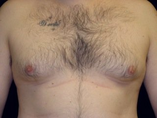 Patient Before Adult Gynecomastia Surgery